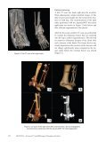 department calcaneus postprocessing - Page 2