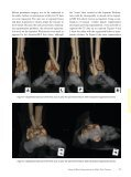 department calcaneus postprocessing - Page 3