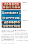 Posterior Occlusion in the Construction of Complete Dentures - Page 3