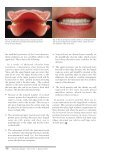 Posterior Occlusion in the Construction of Complete Dentures - Page 4