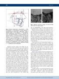 Comparison of treatments with the Forsus fatigue resistant device in ... - Page 3