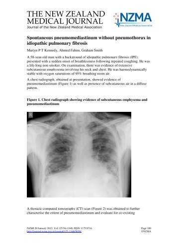 Spontaneous pneumomediastinum without pneumothorax in ...