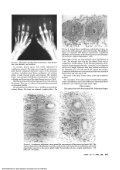 mm INHALATION AEROSOL S t - Page 6