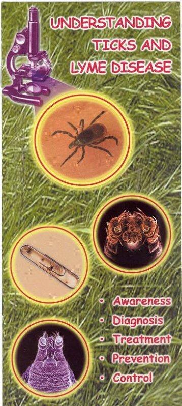 Understanding Lyme Disease