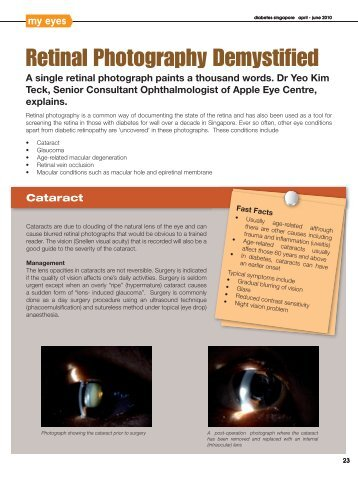 Retinal Photography Demystified