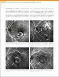 Bölüm 2 - Retina - Page 4