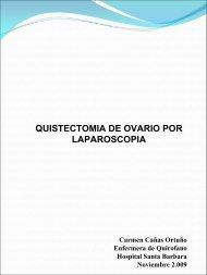 QUISTECTOMIA DE OVARIO POR LAPAROSCOPIA