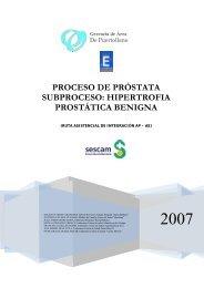 Prostata - Area de Salud de Puertollano