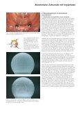 Abnehmbarer Zahnersatz mit Implantaten - Seite 2