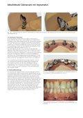 Abnehmbarer Zahnersatz mit Implantaten - Seite 7