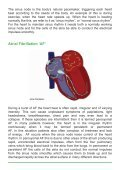 CATHETER ABLATION FOR ATRIAL FIBRILLATION - Page 5