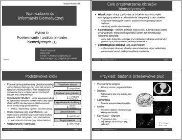 Informatyki Biomedycznej Cele przetwarzania obrazów ... - Aragorn