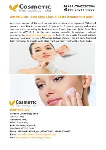 Best Acne Scars Treatment in Delhi India – Aayna Clinic