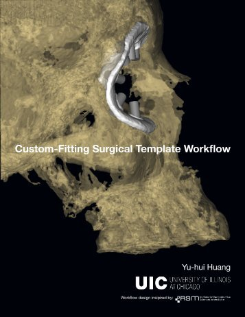 Surgical Guide Workflow