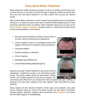 Facts About Botox Treatment