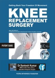 Knee Replacement Surgery For You