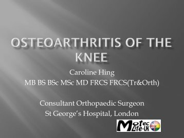 Osteoarthritis of the knee CH.pdf - MOTEC LIFE-UK