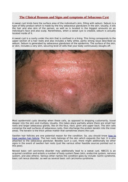 The Clinical Reasons and Signs and symptoms of Sebaceous Cyst