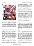 Ulnar Collateral Ligament Reconstruction - Page 4
