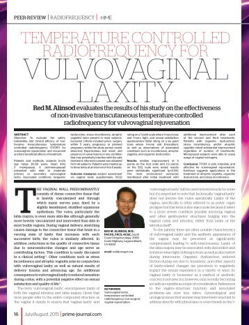 ThermiVa Peer Review Article on Vulvovaginal Rejuvenation
