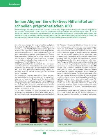 Dr. Nolte -Dentalforum 08-2014-IA Ein effektives Hilfsmittel zu schnellen präprothetischen KFO
