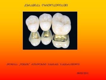 keramika orTopediaSi
