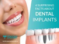 Surprising Facts on Dental Implants!