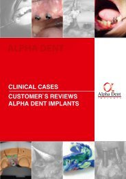 Alpha Dent Implants. Impressive clinical cases & customer's reviews