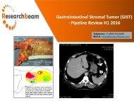 Gastrointestinal Stromal Tumor GIST - Pipeline Review H1 2016