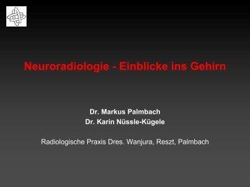 Neuroradiologie – Einblicke Ins Gehirn - Ulmmed