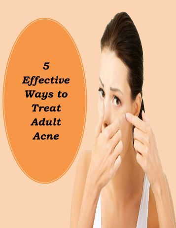 5 Effective Ways to Treat Adult Acne