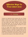 5 Effective Ways to Treat Adult Acne - Page 3