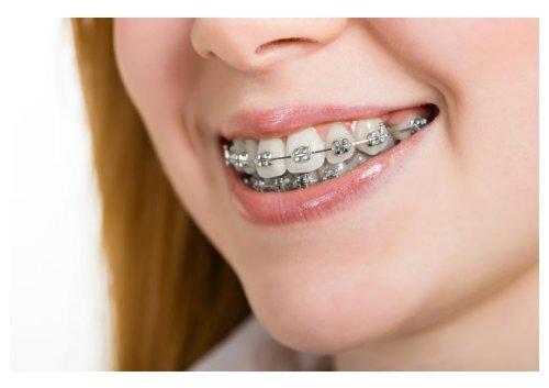 braces Tustin