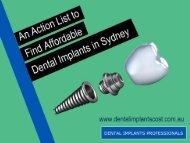 Action List to Find Affordable Dental Implants in Sydney
