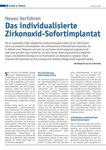 Das individualisierte Zirkonoxid-Sofortimplantat - BioImplant