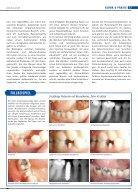 Das individualisierte Zirkonoxid-Sofortimplantat - BioImplant - Seite 2