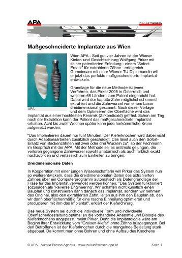 Maßgeschneiderte Implantate aus Wien - BioImplant