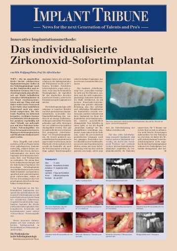 IMPLANTTRIBUNE - BioImplant