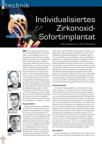Individualisiertes Zirkonoxid- Sofortimplantat - BioImplant