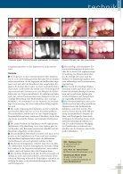 Individualisiertes Zirkonoxid- Sofortimplantat - BioImplant - Seite 4