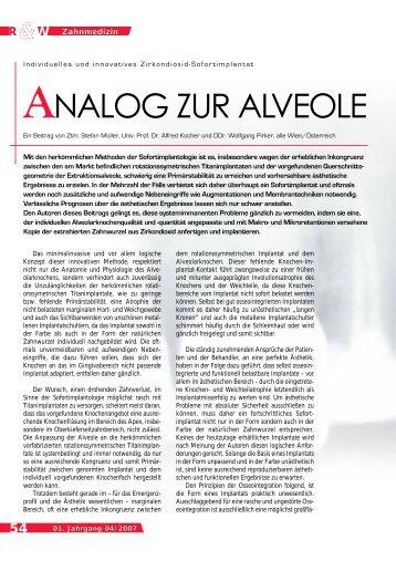 ANALOG ZUR ALVEOLE - BioImplant