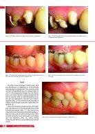 ANALOG ZUR ALVEOLE - BioImplant - Seite 5