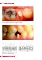ANALOG ZUR ALVEOLE - BioImplant - Seite 7