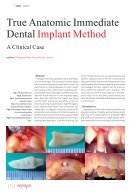 implants - Page 2