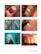 evidence insertion success abutments - Page 3