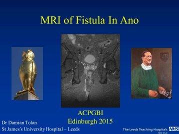 MRI of Fistula In Ano