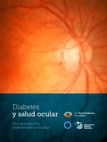 Diabetes y salud ocular