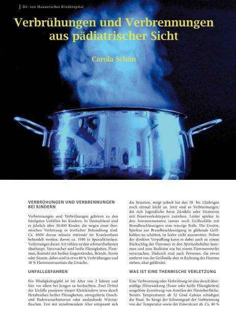 Verbrühungen und Verbrennungen aus ... - Hauner Journal