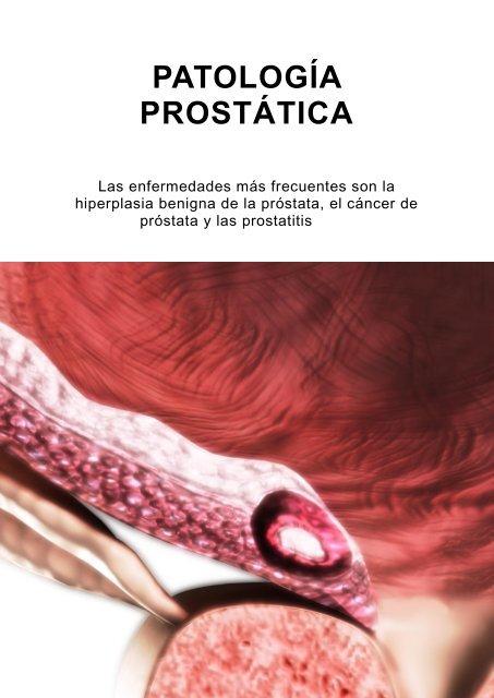 El cáncer de próstata puede ser el resultado de una inflamación crónica de la próstata.