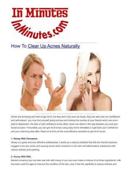 How To Clear Up Acnes Naturally